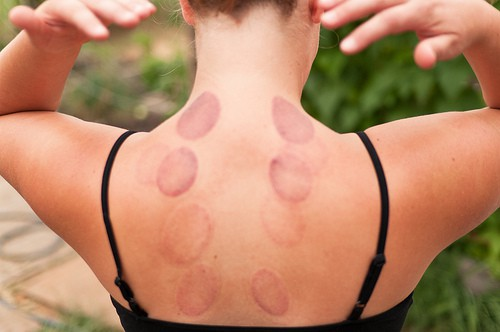 Image result for cupping